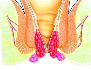 Геморрой при беременности симптомы и лечение