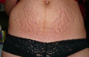 Растяжки на животе после родов что делать?